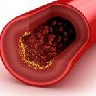 Il Colesterolo non è più una preoccupazione!